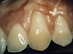 Northlake Periodontics, Gum Grafting