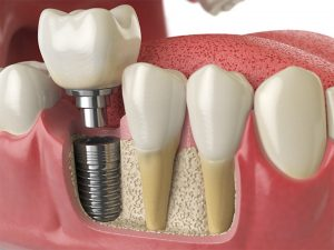 Dental Implants, Implant Placement
